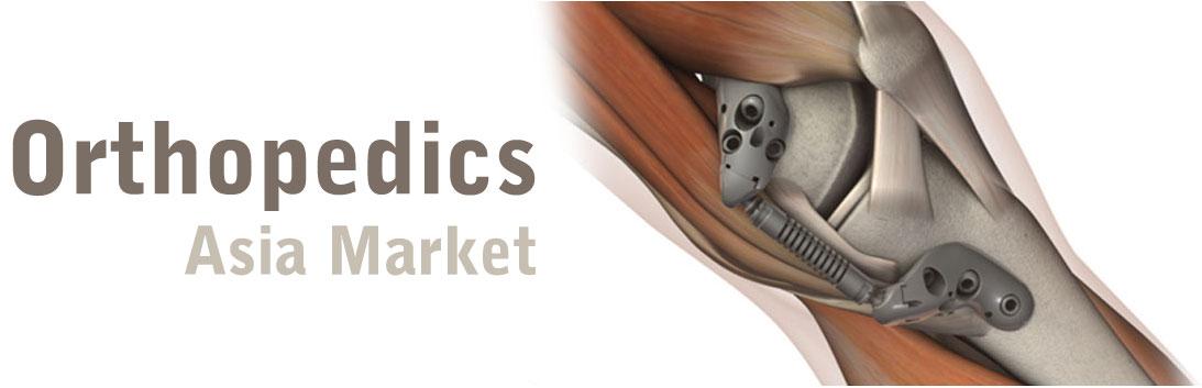Orthopedic Joint Makers Gain Marketshare in Asia - iData