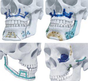 TRUMATCH Titanium 3D-Printed Implants Launch in the US