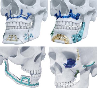 3D printed skull implants