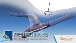Bluegrass Vascular Launches Pivotal Study for Surfacer Vascular Access Catheter