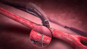 Laminate Medical Launches Study of VasQ Hemodialysis Fistula Device