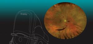 Optos Unveils Monaco, Retinal Imaging Device with OCT