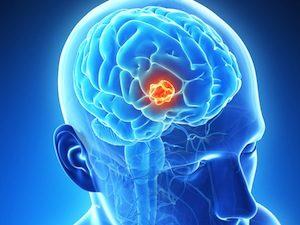 Brain Tumor Extracting Device Deemed FDA Breakthrough Device