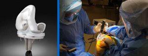 Exactech Launches Truliant Porous Knee Implants