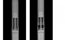 NuVasive recalls scoliosis treatment devices