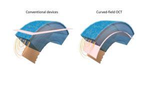 New Cornea Imaging Technique Provides Higher Level of Detail