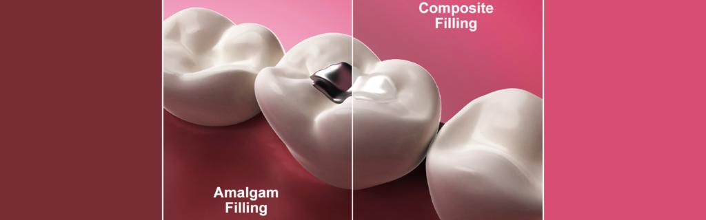 Dental Amalgam vs Composite Materials