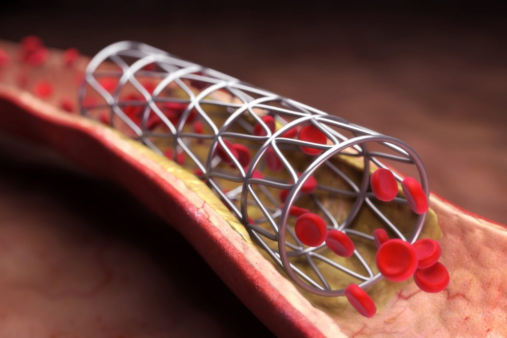 We have identified the different types of stents and analyzed their benefits and draw-backs from the top competitors in the market.