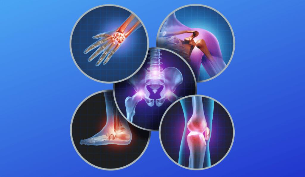 Top US Orthopedic Device Companies