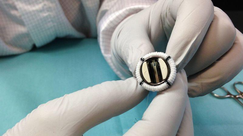 Abbott's 15-millimeter mechanical heart valve