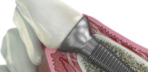 GE Additive Tech Yields New Dental Implant