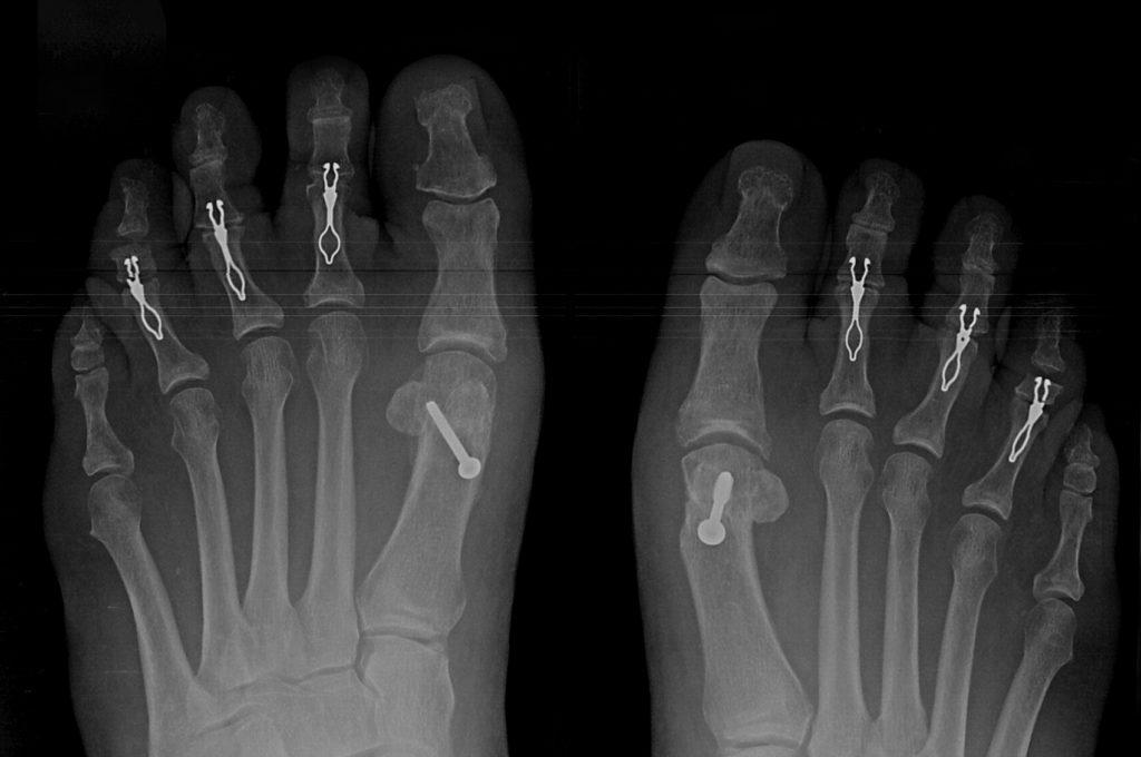 Smart Toe (Stryker) - Hammertoe treatment market