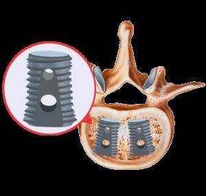 $3.5 Billion Dollars: How the U.S. Orthopedic Biomaterials Market is Growing