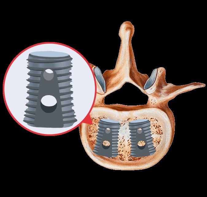 Medtronic's Infuse bone graft substitute