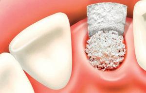 What Will the European Dental Bone Graft Substitute Market Look Like in 6 Years?