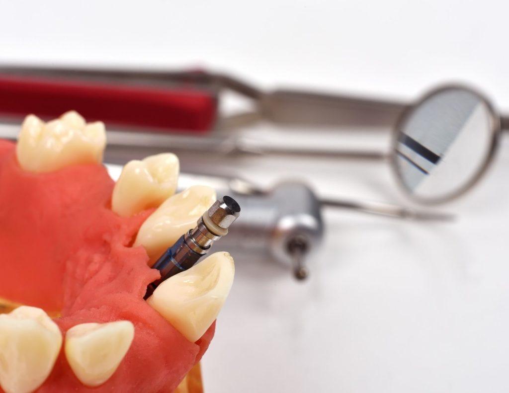 U.S. Dental Bone Graft Substitutes and Dental Implants